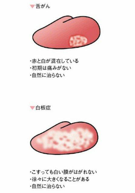 衛生士ブログ,DH宮本|川口の歯医者なら樹モール歯科(土日も